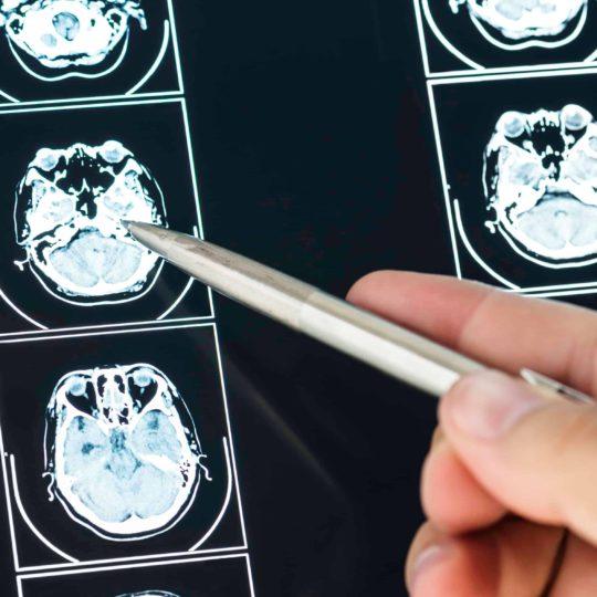 Servicios - Tomografía computada